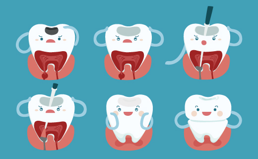 dca-blog_article-04_overview-of-root-canals