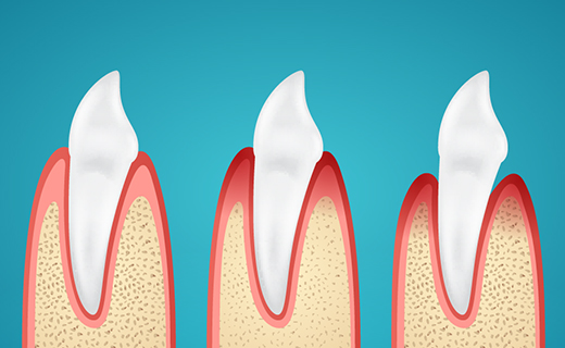 dca-blog_causes-of-gingivitis-and-gum-disease