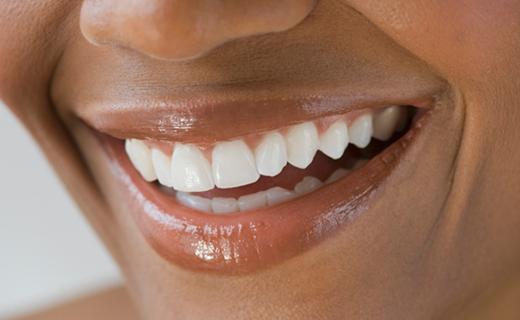 dca-blog_dental-crowns